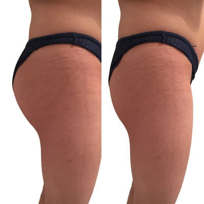 bilvergroting-buttock augmentation with implants